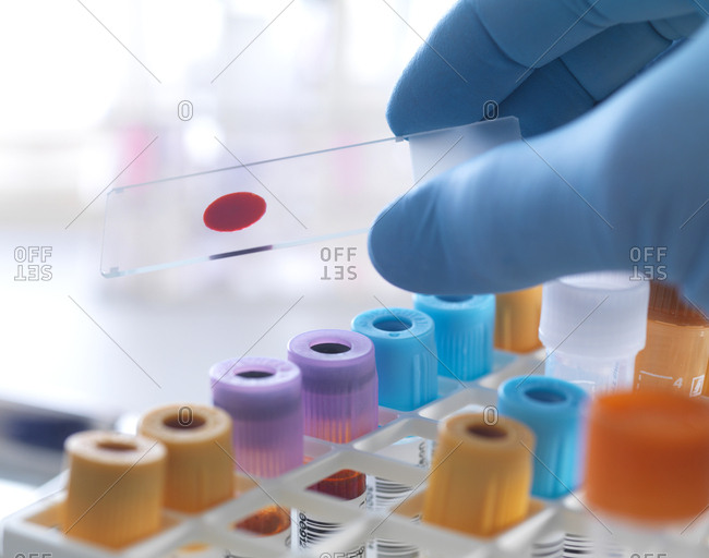 A slide of human blood being held by a technician