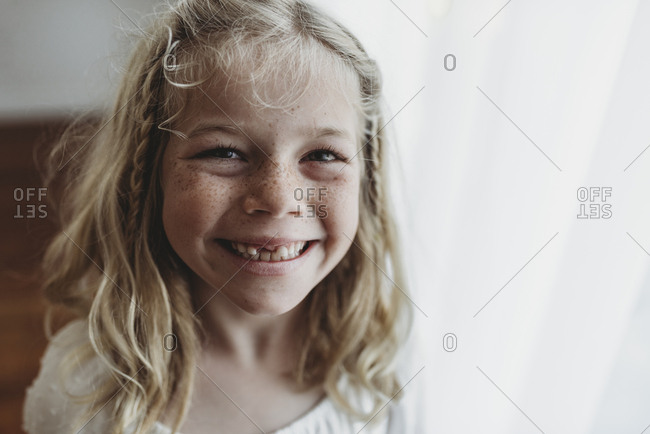 Portrait of young freckled smiling girl missing tooth