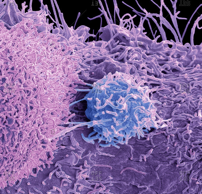 Prostate cancer cell, colored scanning electron micrograph (SEM). of the surface of prostate cancer cells. The cells shows numerous processes and microvilli (fine surface projections). These features are characteristic of highly mobile cells, and enable cancerous cells to spread (metastasis) rapidly round the body, and invade other organs and tissues. Cancer cells divide rapidly and chaotically, and may clump to form malignant tumors. The prostate is a small gland found in men just below the bladder, surrounding the urethra, the tube urine passes through. Prostate cancer is most prevalent in men over 50 years of age. Treatment is with hormone therapy, chemotherapy, or surgical removal of the prostate. Magnification: x 8000 when printed at 10 centimeters across.