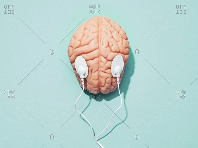 Brain stimulation, conceptual image. Brain and electrodes.