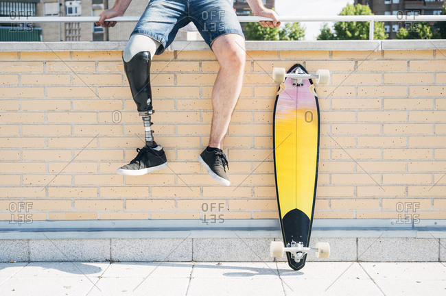 Young man with leg prosthesis sitting on railing in the city next to skateboard