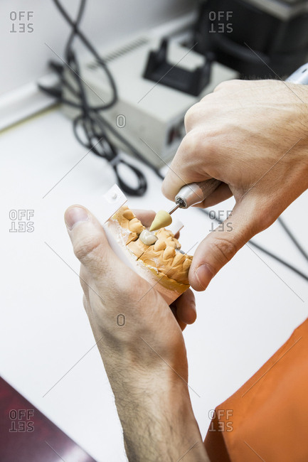 Cropped image of dentist implanting teeth on dental model