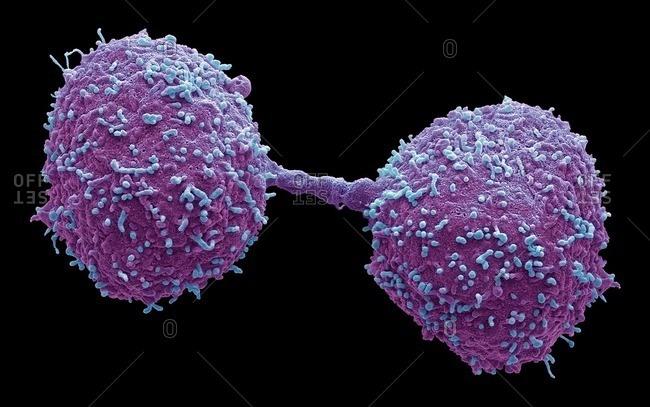 Dividing prostate cancer cells, SEM