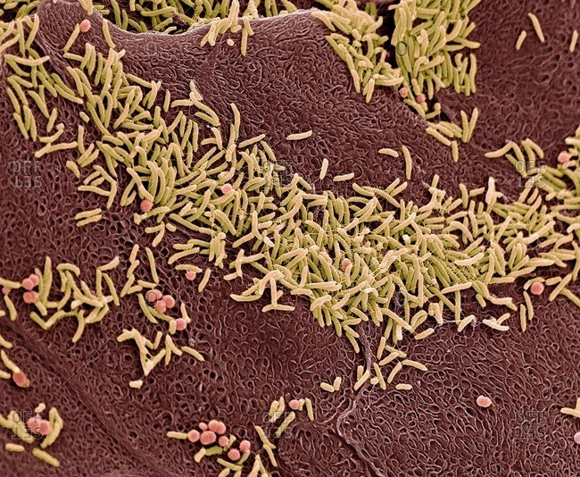 Vaginal bacteria, SEM - Offset Collection