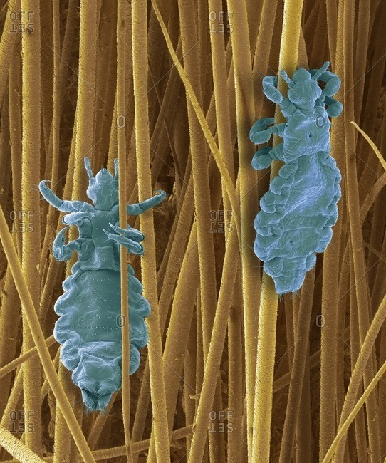 Head lice, SEM - Offset Collection