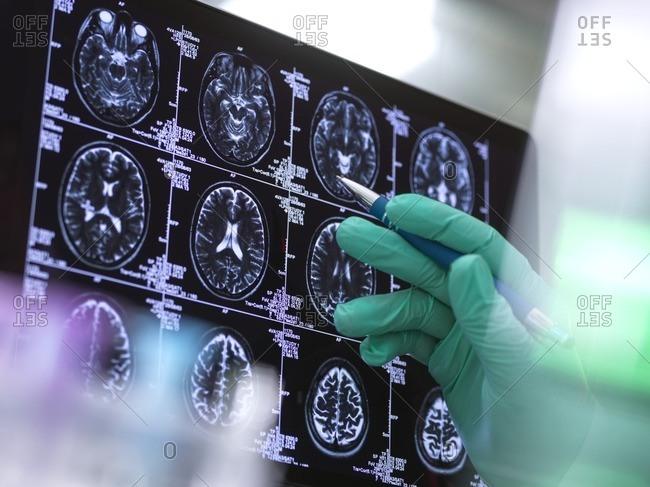 Human brain scan being analyzed in a neurology clinic.
