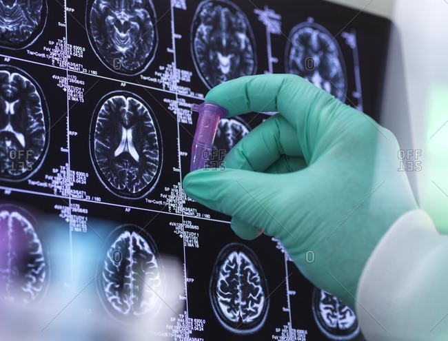 Neurology research, conceptual image. Scientist preparing a sample in front of brain scans.