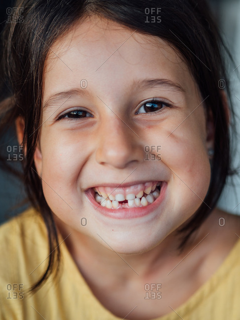 Happy child without tooth looking at camera and cheerfully smiling