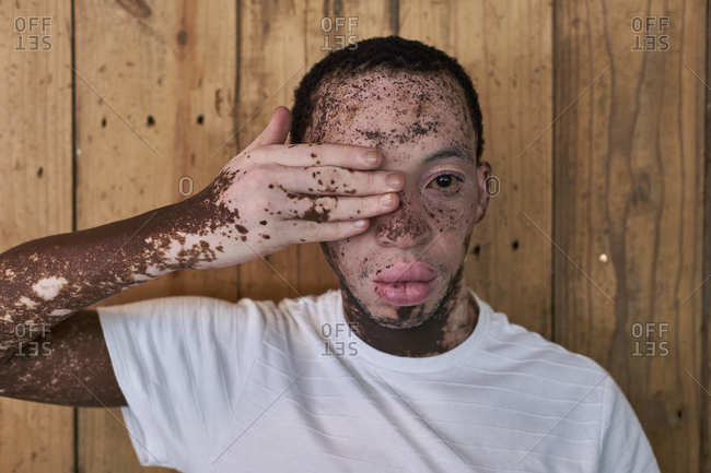 Portrait of a man with vitiligo covering his eye with a hand