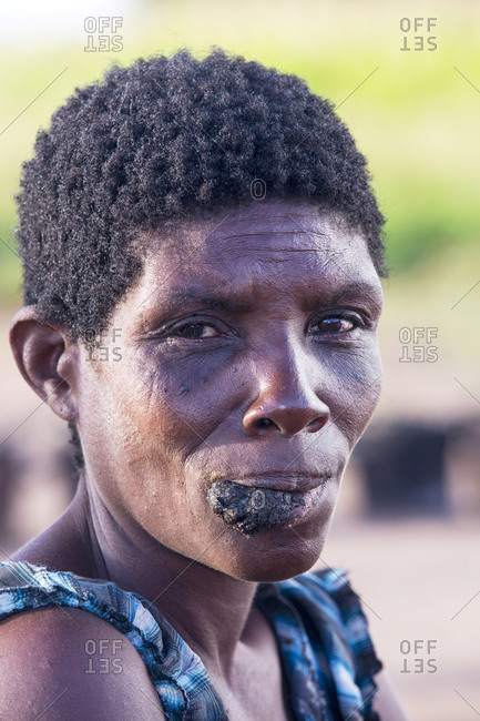 Malawi, Southern Region, Mulanje - March 12, 2015: Displaced woman with a cancerous tumor in the refugee camp of Chiteskesa refuge camp