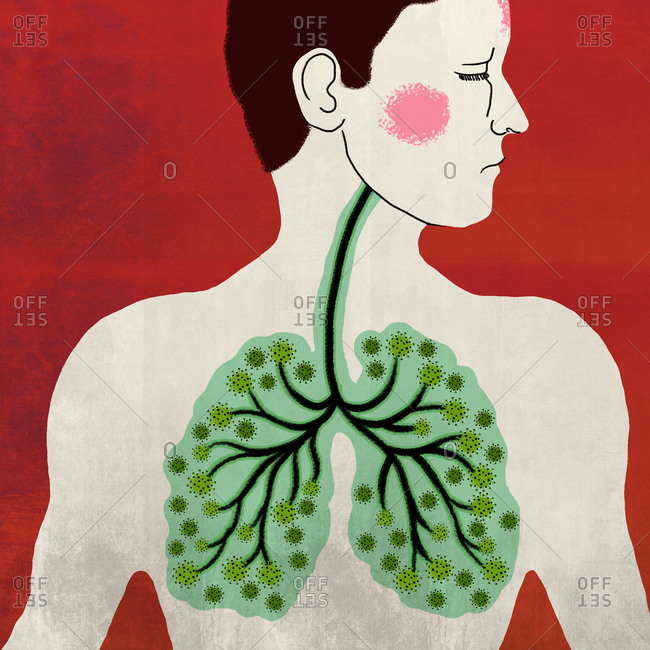 Illustration of lungs of a corona infected patient