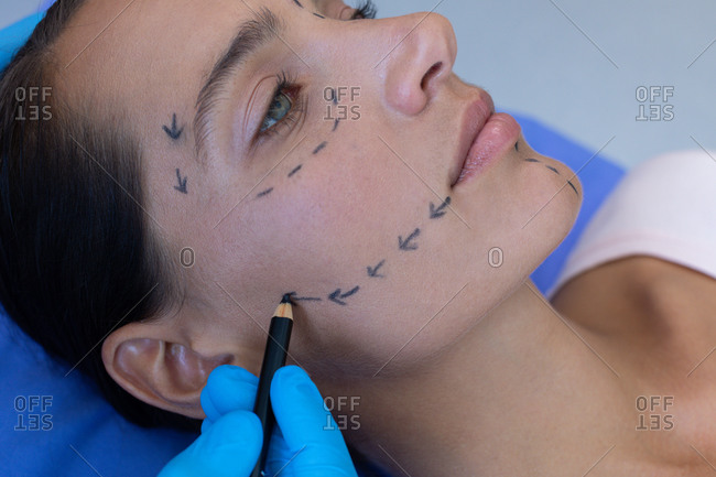 Close-up of male surgeon marking beautiful Caucasian woman face before plastic surgery in hospital