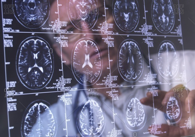 Doctor viewing a human brain scan on a screen in a neurology clinic.