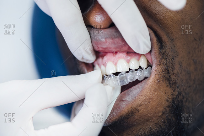 Close-up of dentist applying aligner to patient's teeth