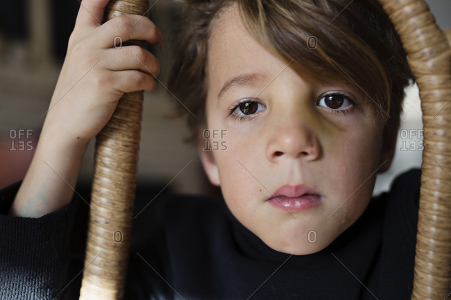 Young boy with bruise and tear on his face
