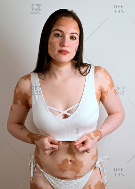 young woman, with vitiligo disease, posing in the studio in a who