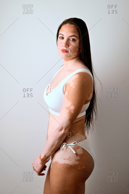 Side portrait of a young woman, a real vitiligo patient, posing