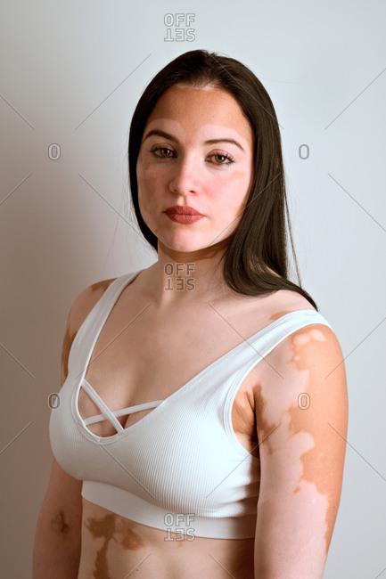 Profile portrait of a young woman, a real vitiligo patient, pois