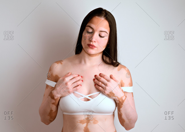 Portrait of a young woman, a real vitiligo patient, posing in the