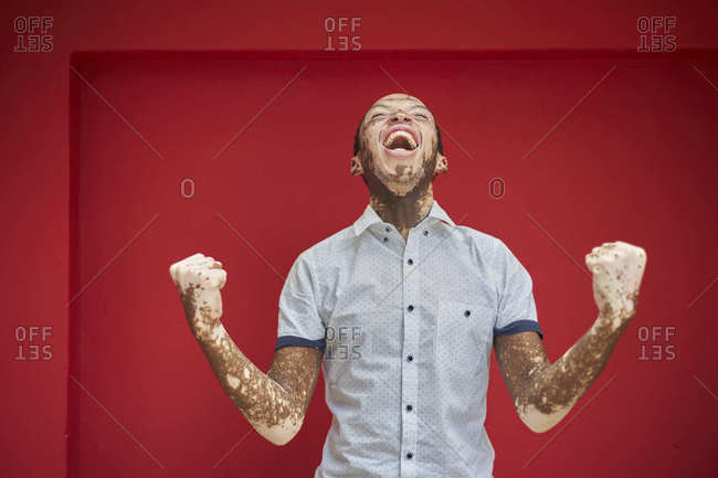 Young man with vitiligo screaming with joy and laughing on a red wall