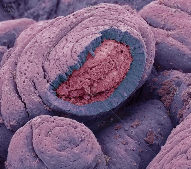 Small intestine. Colored scanning electron micrograph (SEM) of a freeze-fractured of the small intestine. The surface consists of deep folds, called villi. The intestinal surface( pink) is exposed to food. The underlying structure of this surface is seen in the sectioned area. Surface (epithelial) cells (blue) are supported by connective tissue (red) that forms the core of each fold (villus). This central core of connective tissue is known as the lamina propria. This contains large blood vessels, capillaries, some smooth muscle cells and a blind- ended lymph vessel known as a lacteal. The folds increase the area for the absorption of nutrients from food. The height of a villus varies in a small intestine from 0.3 to 0.8 millimetres. Magnification: x800 when printed at 10 centimeters wide.
