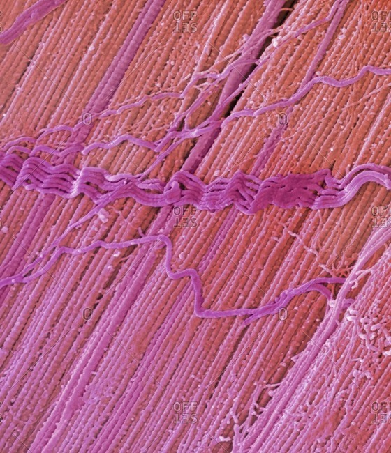 Tendon, colored scanning electron micrograph (SEM), showing bundles of collagen fibers. The parallel alignment of the fibers make tendons inelastic but flexible. Tendons attach muscle to bone. Magnification: x5000 when printed at 10 centimeters wide