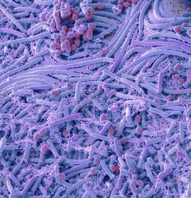 Bacteria from a coin. Colored scanning electron micrograph (SEM) of bacteria cultured from a english one pound coin. A study that tested a random selection of coins and notes of all denominations discovered the presence of 19 kinds of bacteria, including two life threatening bacteria associated with antibiotic resistant superbugs - Staphylococcus aureus (MRSA) and Enterococcus faecium (VRE). Bacteria associated with MRSA was discovered on the 2p, 5p, 10p, �1 and �2 coins, as well as the �10, �20 and �50 notes. MRSA can lead to boils, skin infections, food poisoning and toxic shock syndrome. The bacteria Enterococcus faecium was found on the 2p, 5p and 10p coins as well as the �10 note. This bacteria can cause blood, abdomen, skin and urinary tract infections. Magnification: x2600 when printed at 10cm wide.