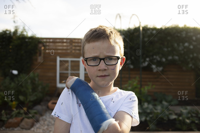 Blonde boy with glasses wearing a blue cast on his arm