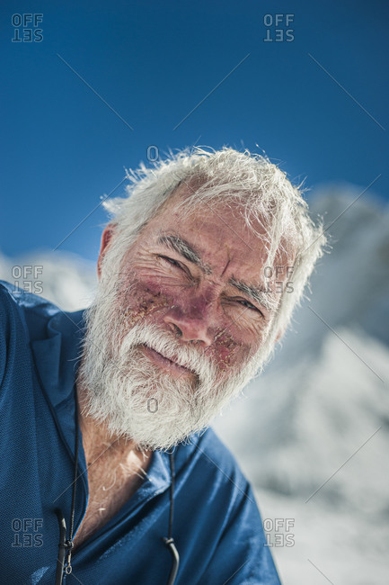 A climber at Everest base camp the day after he has successfully summited Everest shows the signs of exposure at high altitude on his face