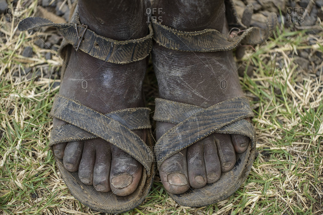 Dirty feet of an Ethiopian teenager, Ethiopia
