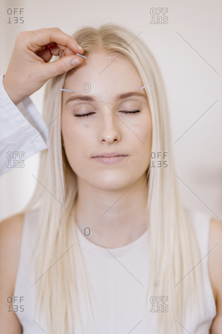 Acupuncture- young woman with acupuncture needle during treatment in the face