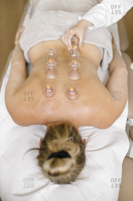 Cupping therapy- treatment at back