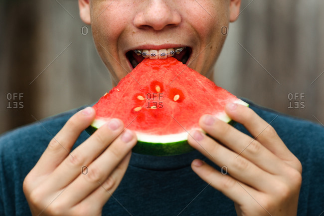 Teen boy with braces bites into watermelon