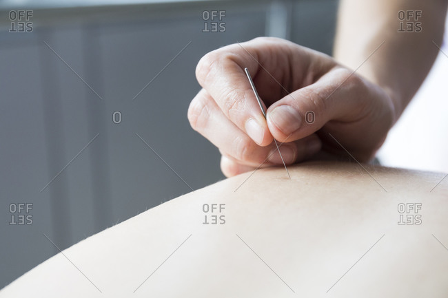 Close up acupuncturist applying acupuncture needles to woman's back