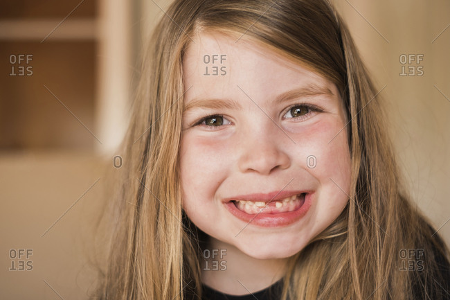Closeup of a young girls mouth with missing teeth