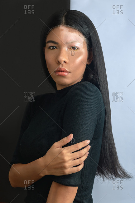 Side view of young sensual emotionless ethnic female with dark hair and vitiligo skin condition looking at camera while standing near black and white wall in flat