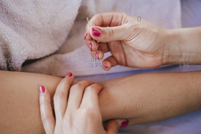 Close-up of woman inserting acupuncture needles in female customer's arm on table