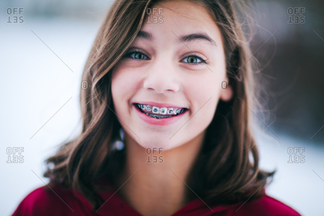 Young girl with dental braces