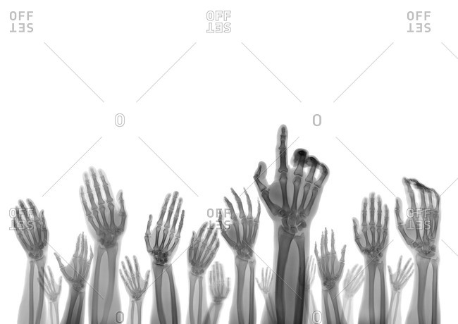 X-ray of hands reaching up