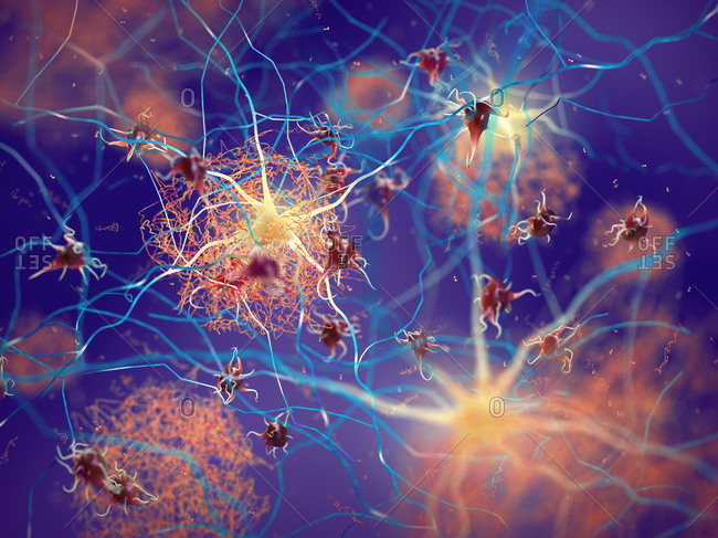 Amyloid plaques in a brain with Alzheimer's disease, illustration.