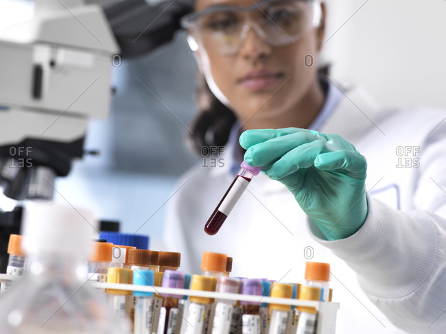 Female scientist preparing a blood sample for clinical testing in the laboratory