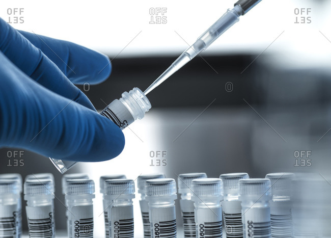 Clinical testing, DNA sample being prepared for testing in the lab.
