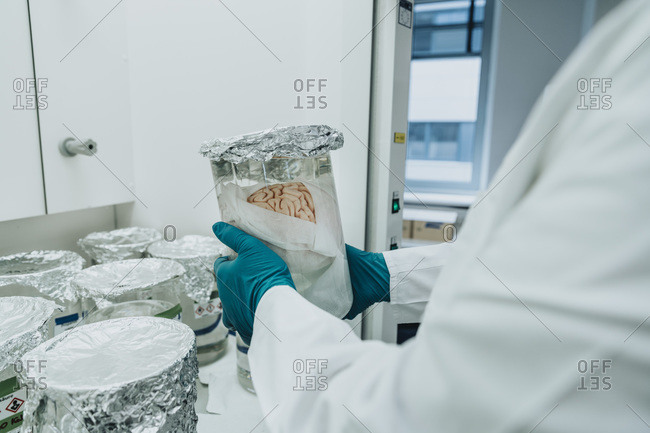 Scientist holding preserved human brain beaker while standing at laboratory