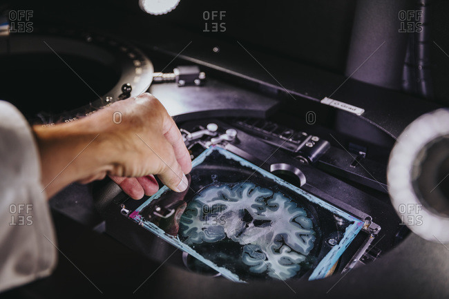 Close-up of scientist hand removing human brain slide from microscope at laboratory