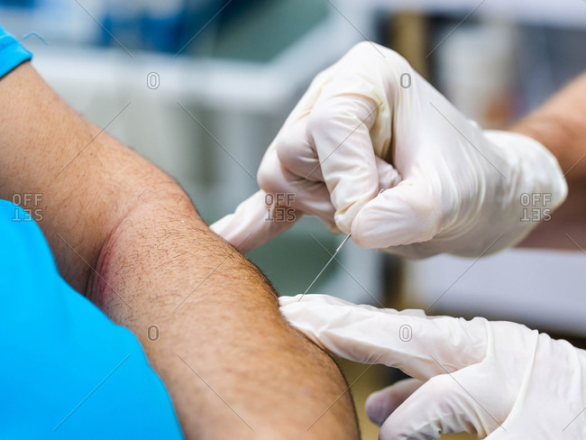 Closeup anonymous doctor in latex gloves inserting needle into arm of patient during acupuncture therapy in clinic