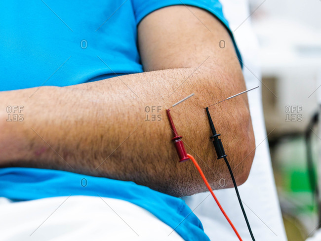 Closeup anonymous male patient with needles and electric wires inserted into arm during electroacupuncture therapy in clinic