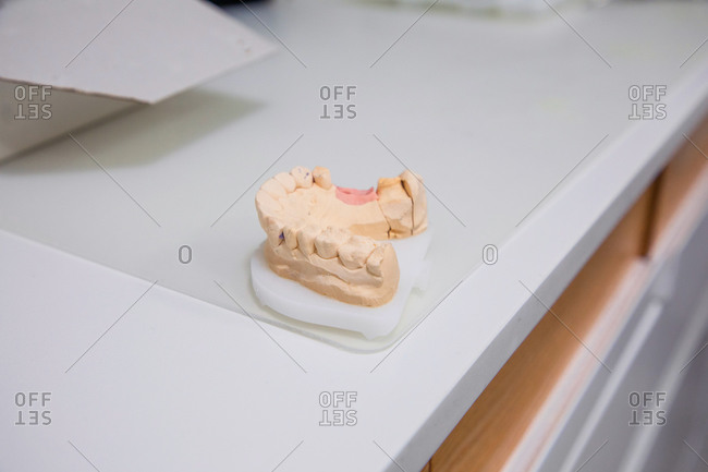 Plaster cast of jaw placed on white table in medical room of modern dental clinic