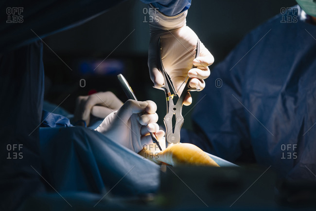 Male orthopedic surgeons using medical equipment for ankle surgery in operating room