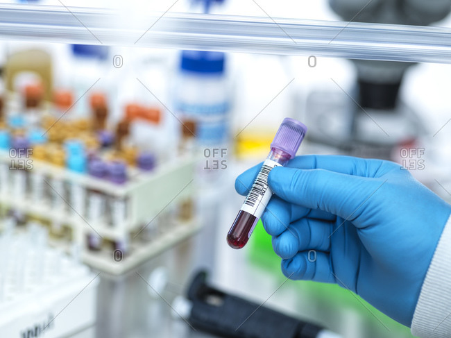 Medical technician preparing human samples for medical testing in lab