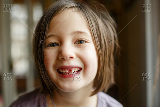 close-up of proud little girl showing off missing tooth with big smile